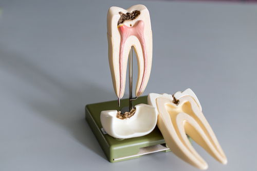 The Not So Scary Truth About Root Canals