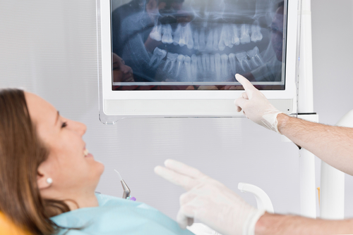 Dental X-Rays, Who Needs 'Em? (You Do!)