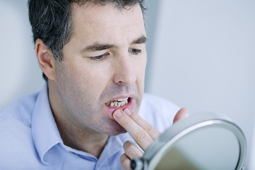 Does Flossing Cause Gum Pain?