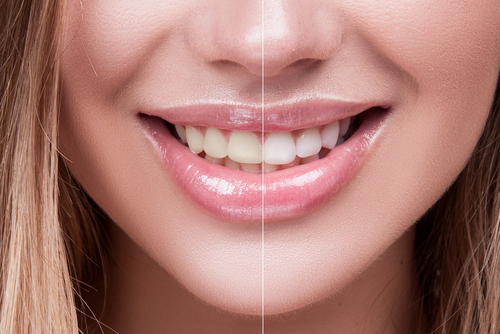 Is It Healthy For Teeth to Be REALLY White?